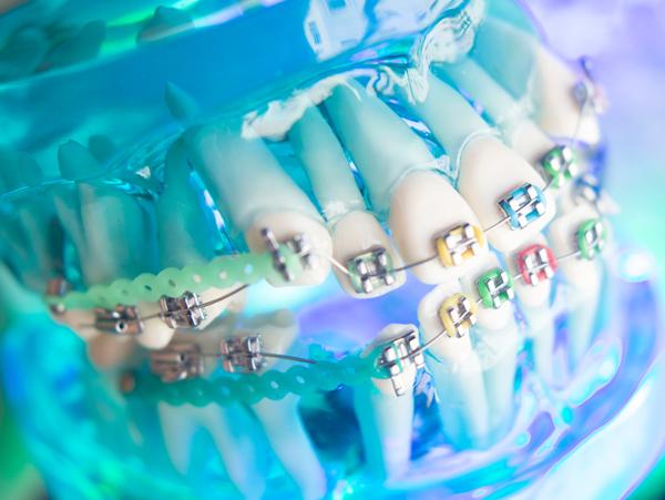 DIY Teeth Aligners