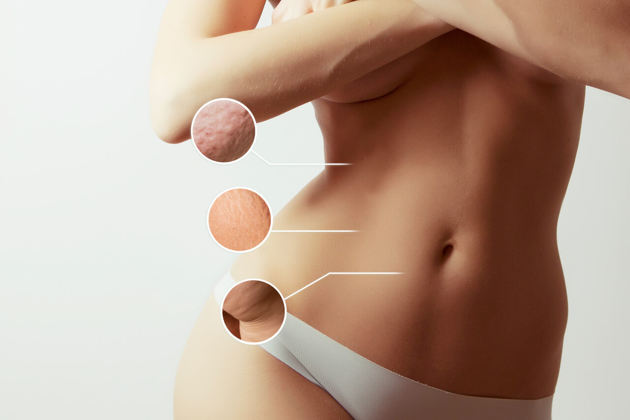 liposuction scars