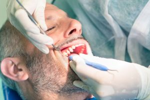 dental prophylaxis for male patient