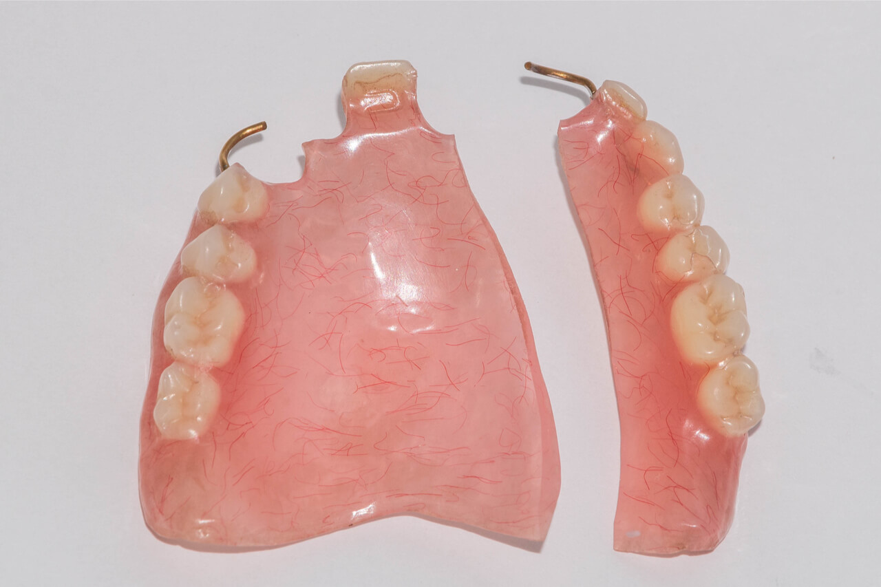 broken denture repair cost
