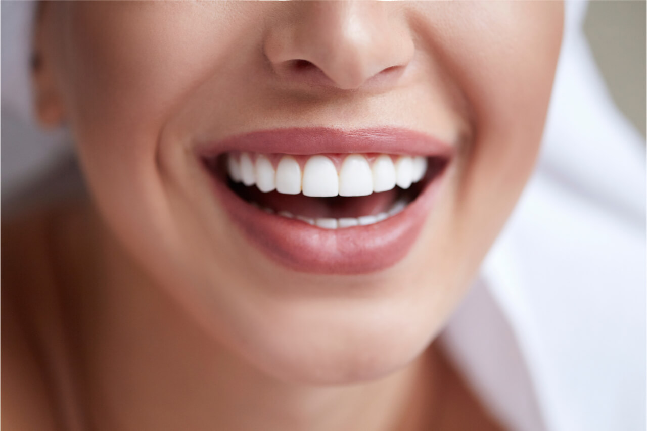 porcelain veneers new york
