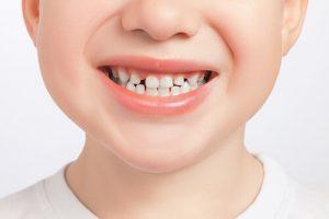 natural gapped teeth